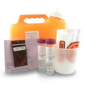 iodine urine test